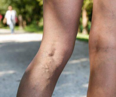 leg-swelling-1080x675