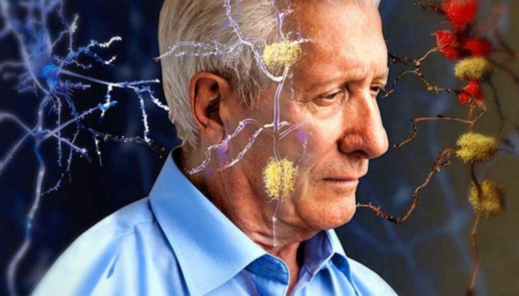 alzheimer-temprano-y-tratamiento-personalizado-1-1280x720