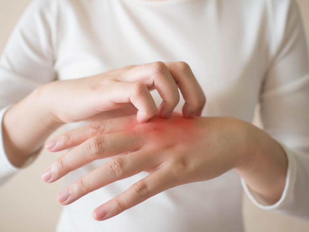 Urticaria, factorii determinanți și tratament